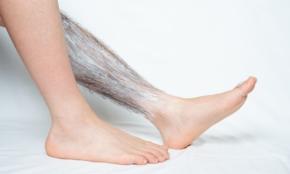 「脱毛剤」のトラブルが多発。正しい使い方を医師に聞く