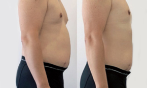 1週間で4キロ減。男性記者が「常識を覆す方法」で痩せるまでの記録