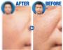 男だって美肌に!最新美容治療を記者が体験、濁った廃液を見てびっくり